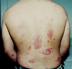 Eczema a causa di uninfiammazione in una vagina