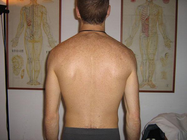 Yoga a dermatite atopic